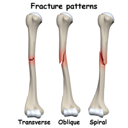 Compression Fracture Natural Remedies